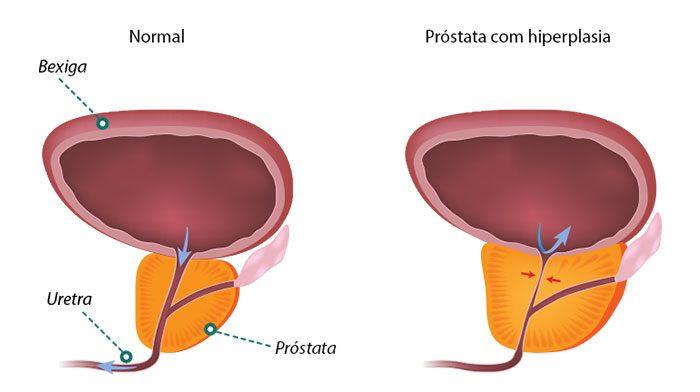 Hiperplasia Prostática Benigna - HPB